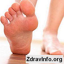 Halk ilaçları ile tırnak mantarının etkili tedavisi