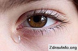 Gözlerde Rez - nedenleri